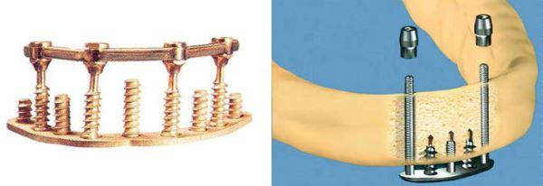 Используемые импланты