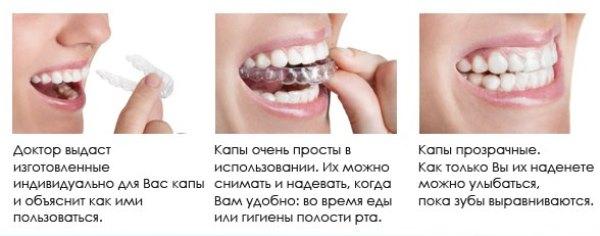 Этапы лечения