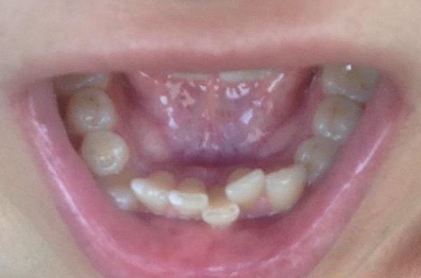 Исправление дефектов на нижней челюсти