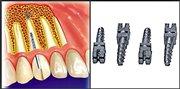 Эндодонтически стабилизированные имплантаты применение