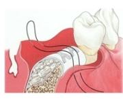Направленная костная регенерация в стоматологии