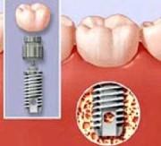 Этапы приживления зубных имплантов