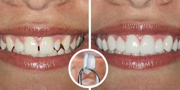 Выровнять передние зубы в домашних условиях