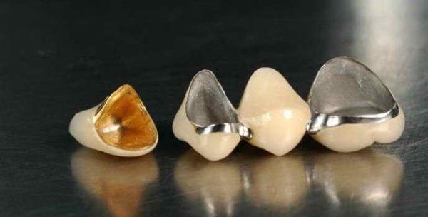 Аллергия на зубную металлокерамическую коронку симптомы