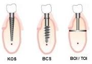 Ihde Dental импланты виды
