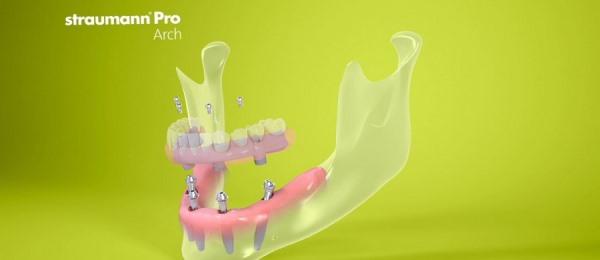 Имплантация Pro Arch