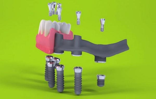Плюсы и минусы имплантации Pro Arch