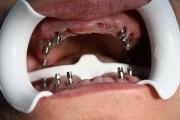Имплантация при пародонтите