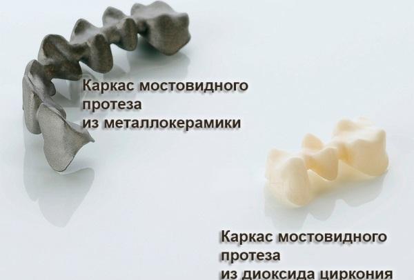 Различия по материалу