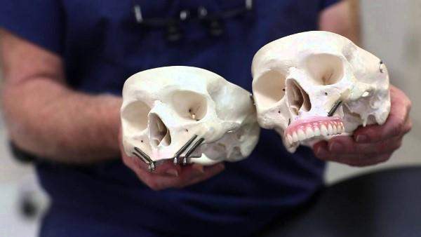 Скуловая имплантация зубов