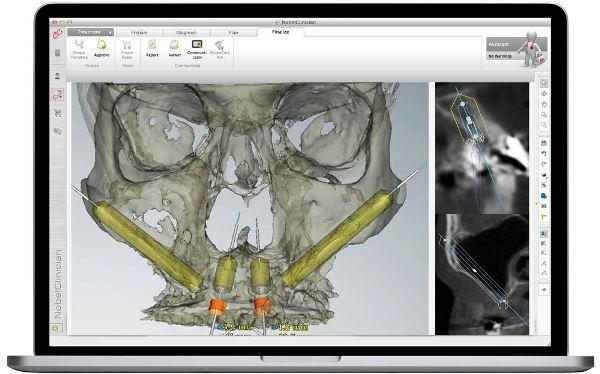 Скуловая имплантация зубов отзывы