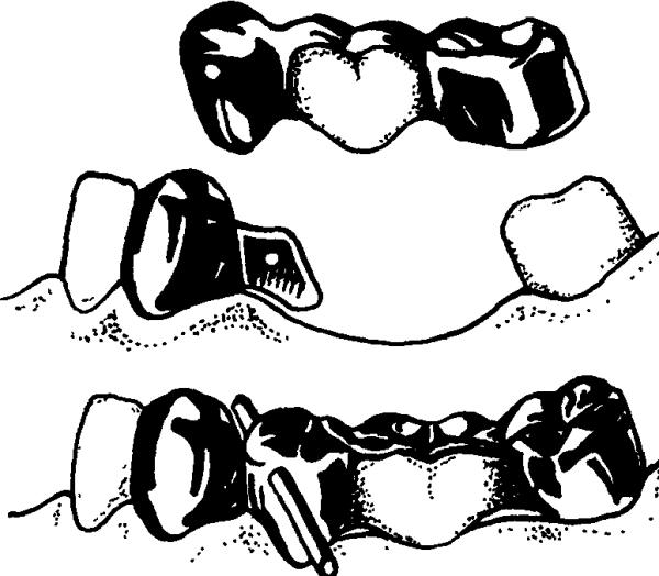 Составные элементы бюгельного протеза