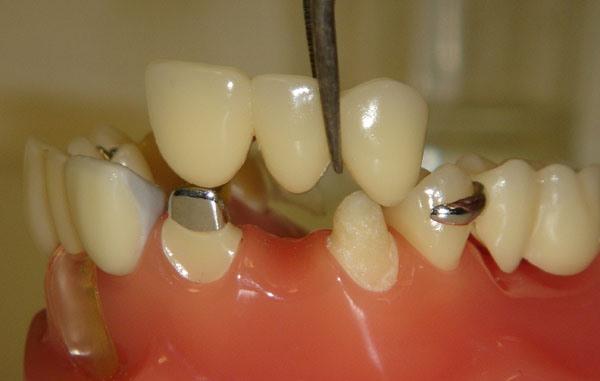 отбеливание зубов кемерово
