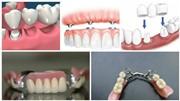 Какие бывают виды протезирования при отсутствии большого количества зубов