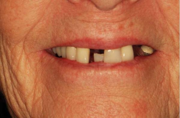Существующие виды протезирования при отсутствии большого количества зубов