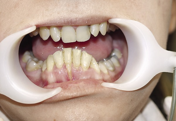 Хирургический метод ортодонтического лечения