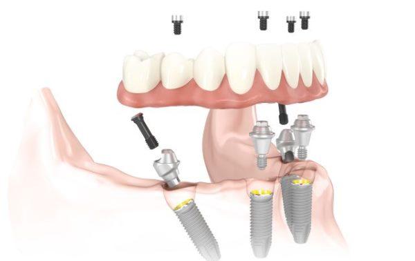 Имплантацию зубов по протоколу немедленной нагрузки