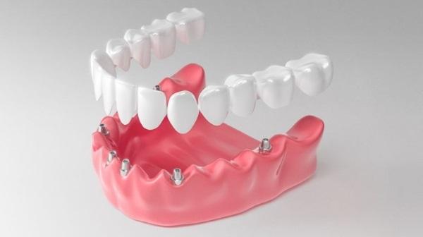 Отзывы об имплантации зубов с немедленной нагрузкой