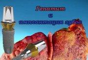 Имплантация зубов при гепатите с