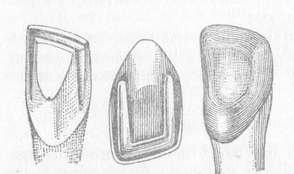Изготовление полукоронок на зубы