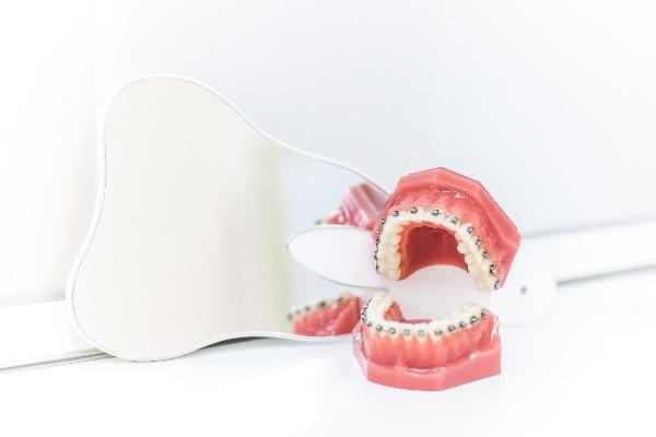Классические и радикальные методы ортодонтического лечения