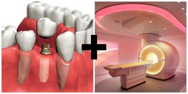 Можно или нельзя делать МРТ с имплантами зубов