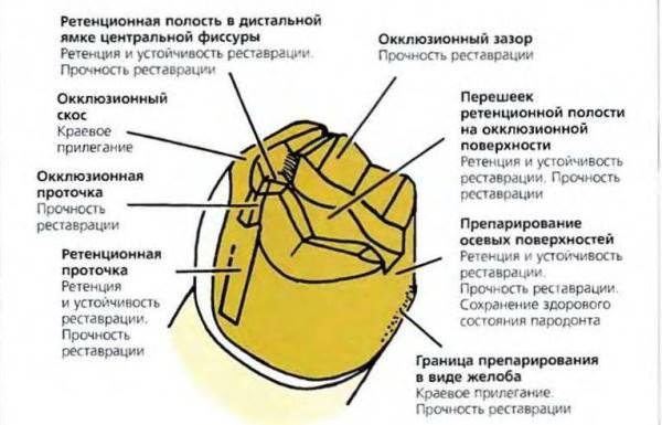 Полукоронки трехчетвертные коронки