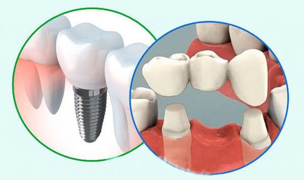 Чем отличается протезирование от имплантации зубов, и что лучше по мнению специалистов