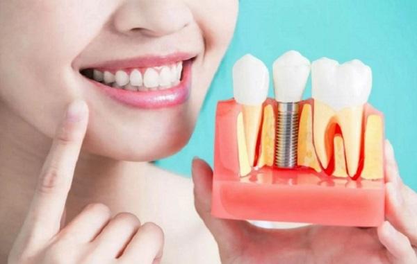 Что кушать после имплантации зуба