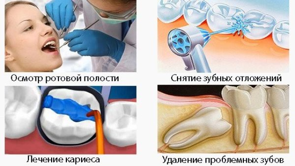 Импланты из циркония и титана что лучше