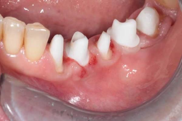 Имплант зуба цирконий цена
