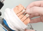 Имплантация с немедленной нагрузкой цена