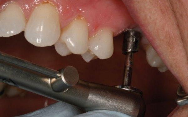 Имплантация верхних жевательных зубов