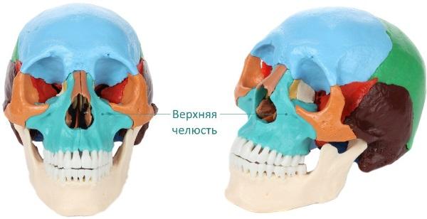 Съемный зубной протез на верхнюю челюсть цена