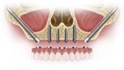 Скуловая имплантация