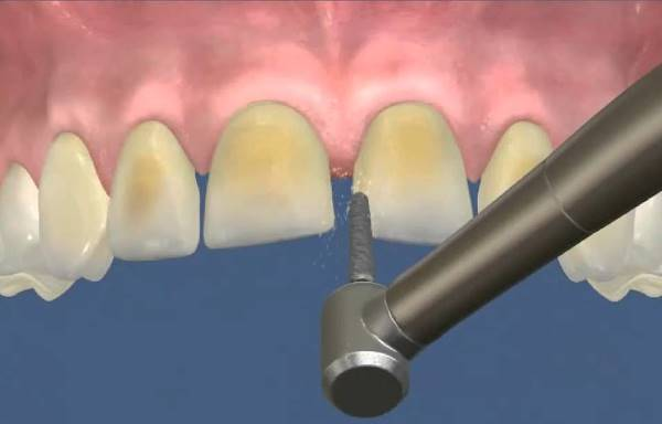 Болят ли зубы после установки виниров
