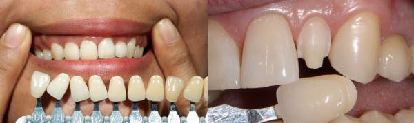 Болят зубы после установки виниров