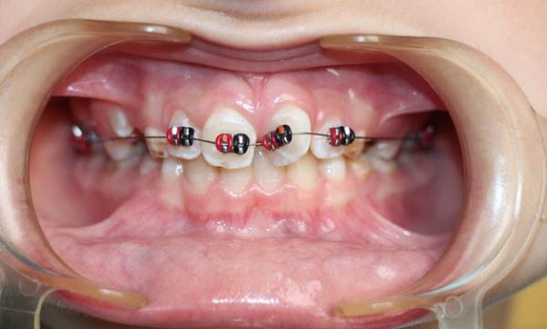 Частичные брекеты на 2 зуба