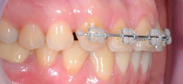 Частичные брекеты на 4 зуба