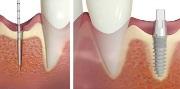 Эндоскопическая имплантация зубов отзывы