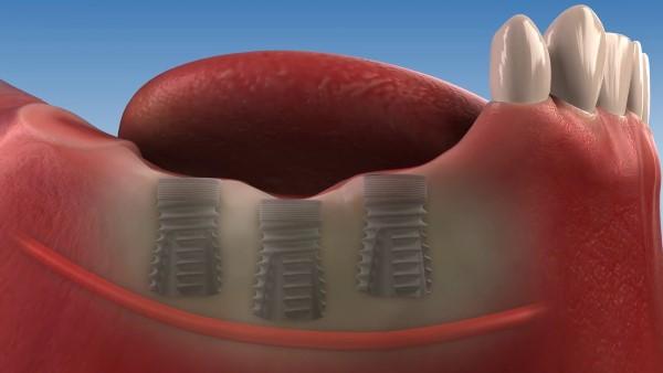 Особенности конструкции имплантов Dentack