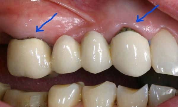 Запах из под коронки зуба причины и как устранить