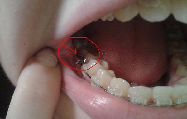 Шатается зуб под брекетом