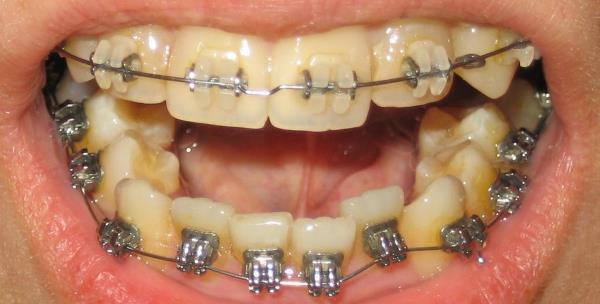 Появление налета на зубах
