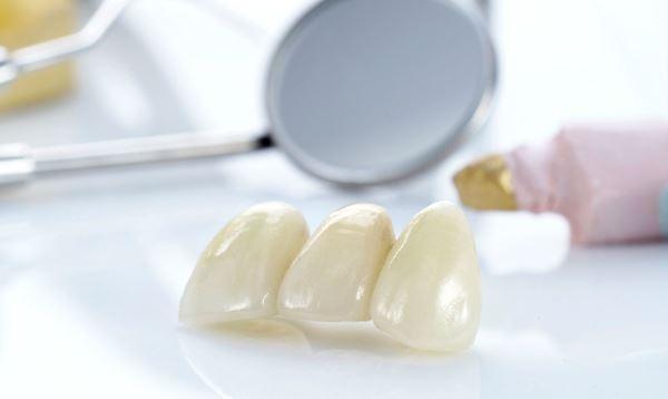 Обжиг стоматологической керамики