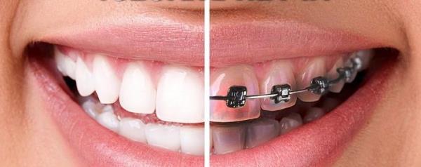 Когда лучше проводить отбеливание зубов после снятия брекетов