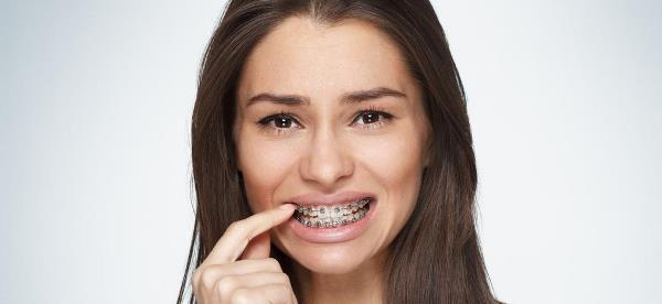Всегда ли шатаются зубы в брекетах