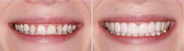 Накладные зубы snap on smile видео