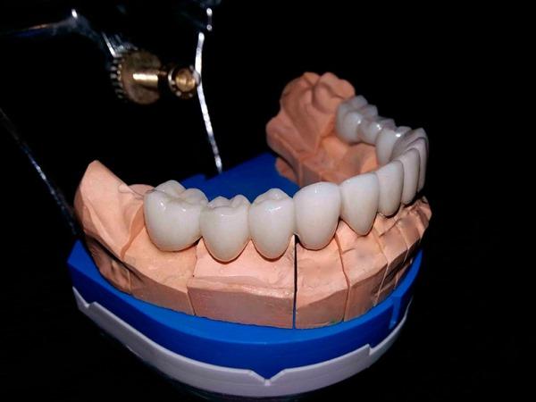 Плюсы и минусы стоматологической керамики