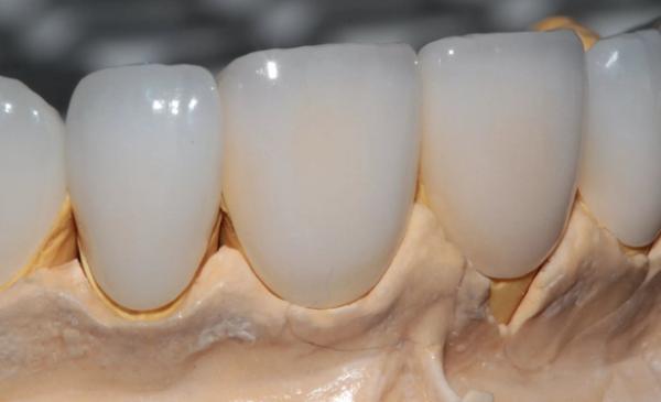 Циркониевые виниры на зубы